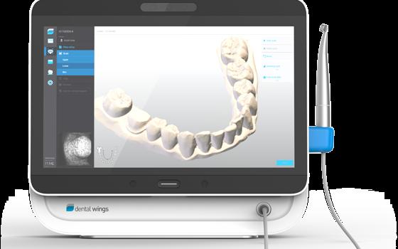 Presentazione – Scanner Intraorale 3D Dental Wings